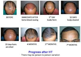 hair transplant month by month pictures dr bishan mahadevia s hair transplant clinic india hair