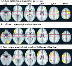 Cortical Blindness May Result From The Destruction Of Attention To One Or Two Features In Left Or Right Visual Field A