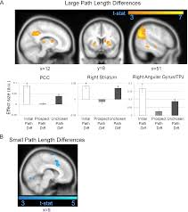 the neural representation of prospective choice during spatial