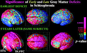 Brain Mapping Mapping Adolescent Brain Change Reveals Dynamic Wave Of