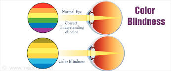 color blindness types causes symptoms diagnosis u0026 treatment