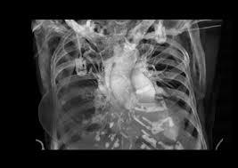 stanford cardiovascular institute