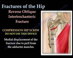 fractures of the hip and its fixation everything you need to