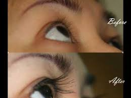 hair transplant in the philppines cost eyelash transplant manila philippines by manzanares hair