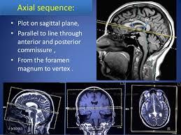 Sagittal Brain Mri Anatomy Mri Procedure Of Brain