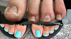 ugly feet transformed into modish amazing toe nail art tutorial
