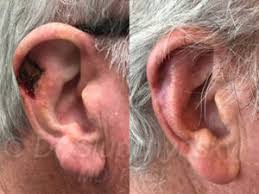 cancer of the ear cartilage skin cancer 14 the aesthetic institute of new york new