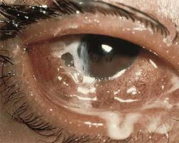 What Is Congenital Blindness Conjunctivitis What Is Pink Eye American Academy Of Ophthalmology