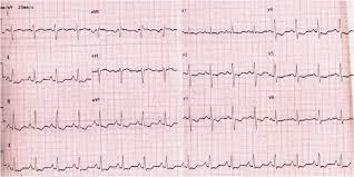strain pattern ecg meaning the ecg show sinus rhythm with right axis deviation pulmonal p wave