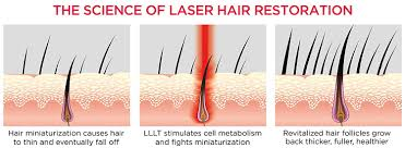 amazon com irestore laser hair growth system fda cleared hair