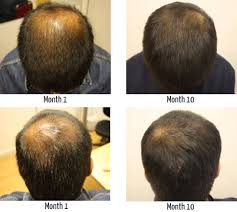 hair loss of the crown and vertex regrow hair on a thinning crown