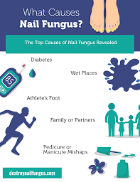 what causes nail fungus the top 5 causes revealed destroy nail