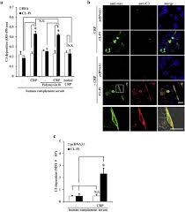 Collectin CL P1 utilizes C reactive protein for plement