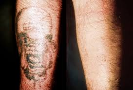 laser tattoo removal phoenix az images tattoo world pinterest