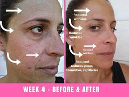 neutrogena light therapy acne mask before and after we tried the project e beauty led face mask for 30 days results are