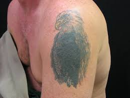 13 best tattoo removal prices images on pinterest tattoo designs