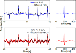 evaluation of the fetal qt interval using non invasive fetal ecg