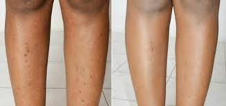 how to remove ingrown hair in thigh dark spots luxury web ru