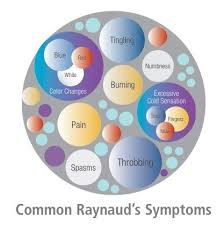 everyday signs of raynaud s special message for friends family