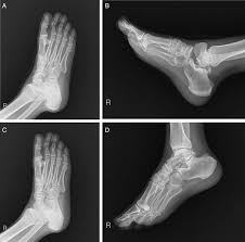 Subtalar Joint Fracture Fracture Of The Posterior Process Of The Talus With Concomitant