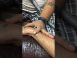tattoo removal by laser in india youtube