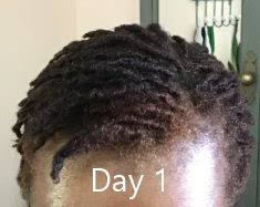 stages of dreadlocks pictures the very early stages of my dreadlock journey a dose of health