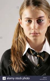 makeup special effects school school girl with a black eye and injuries posed by model