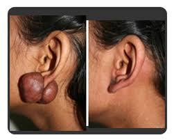 pressure earrings lakshya kiran
