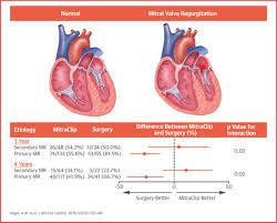 Heart Anatomy And Function Secondary Mitral Regurgitation In Heart Failure Jacc Journal Of
