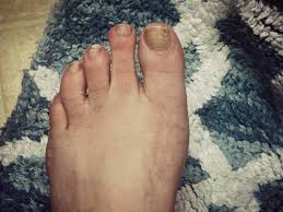 there will be a 5 00 charge for whining a diy pedicure 17 weeks
