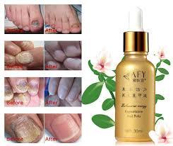 online buy wholesale nail fungus foot from china nail fungus foot