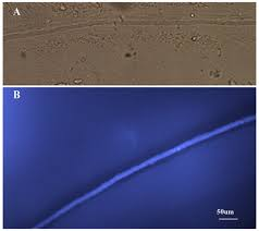 do jellyfish have central nervous systems journal of