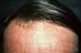 what causes hair loss in women over 50 hair loss american academy of dermatology