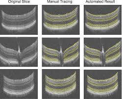 automated 3d segmentation of intraretinal surfaces in sd oct