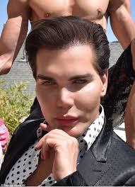 paddy mcguinness hair transplant human ken doll rodrigo alves has hair transplant after botched