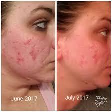 Serum Acne acne scar reducing serum navan skin care