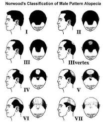 men growing hair out stages balding guys and the man bun a practical guide man bun hairstyle