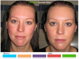 no need to be red from rosacea use r f