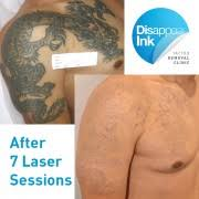 laser tattoo removal reviews disappear ink tattoo removal