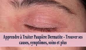dermite du si e apprendre à traiter paupière dermatite trouver ses causes