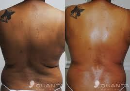 laser hair removal dark skin tattoo removal on dark skin
