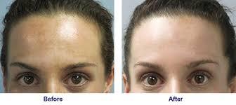 intense pulsed light review intense pulsed light philadelphia skin restoration main line