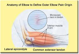 Bench Press Lock Elbows Erase Outer Elbow Pain Fast In Just 5 Steps