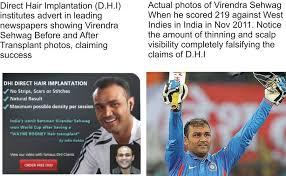 dhi hair transplant reviews direct hair implantation dhi hair transplant institute hair