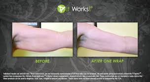 before and after one ultimate body applicator arm wrap
