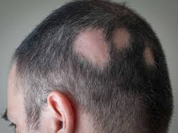 images of hair dandruff causes and treatments