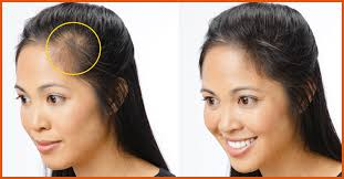 women hair cut to cover bald spot on top of head top 10 home remedies to cure baldness effectively