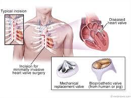Anatomy Of Heart Valve Heart Valve Disease