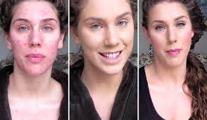 best makeup concealer for scars saubhaya makeup