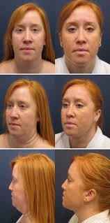this 40 year old woman had liposuction of the neck improving her
